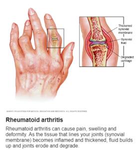 Ρευματοειδής αρθρίτιδα (Rheumatoid arthritis)